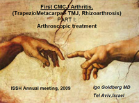 First CMCJ Arthritis: Part I- Arthroscopic Treatment