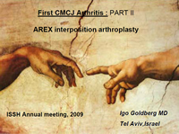 First CMCJ Arthritis: Part II- AREX interposition arthroplasty