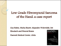 Low Grade Fibromyxoid Sarcoma of the Hand: a Case Report